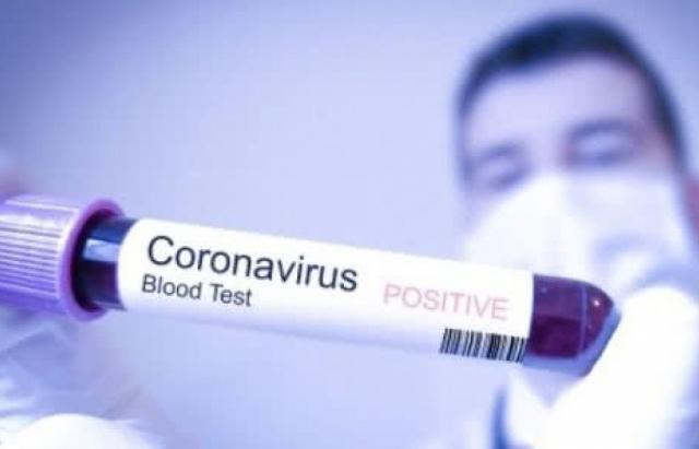 У мукачівки підтвердився коронавірус. Це перший випадок Covid-19 на Закарпатті