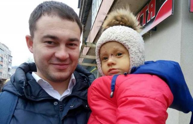 Сім'ї маленького Сашка Нікітіна вдалося зібрати 128 тисяч євро на складну операцію в Бельгії (ФОТО)