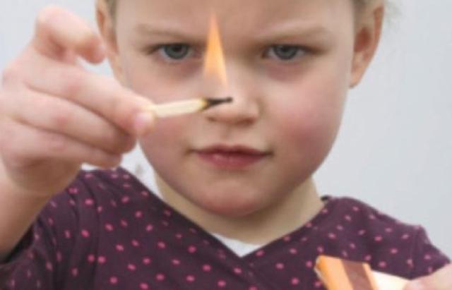 7-річна дівчинка з Перечинщини граючись з бензином обпалила собі обличчя